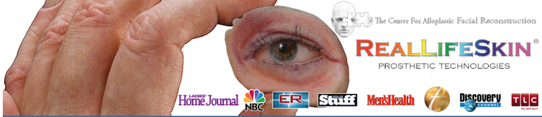 Reallifeskin prosthetic technologies artificial eye
